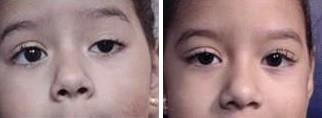 Ptosis - Left Eye