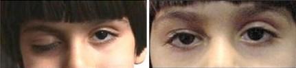 Ptosis - Right Eye