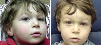 Duane's Syndrome Type 1 - Left Eye